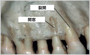 歯ぐきがやせると歯周病?